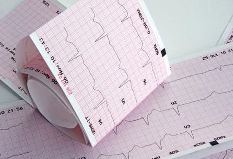 Tulburări cardio-circulatorii